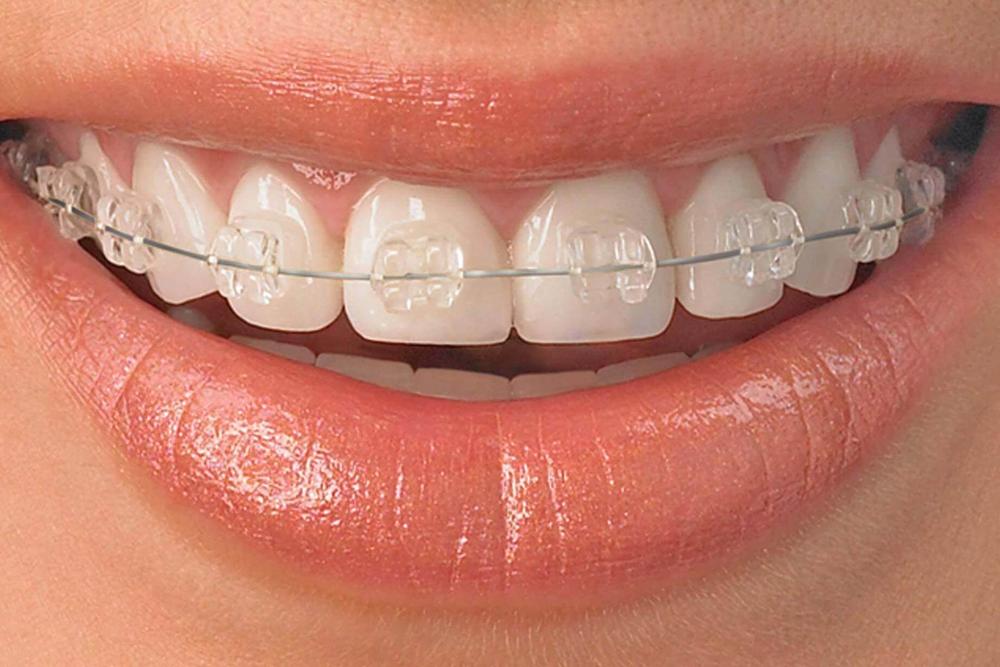 Ortodontia Facial